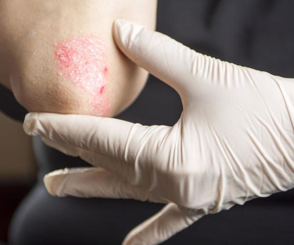 Łuszcząca się skóra - to musisz wiedzieć