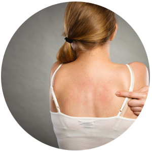Malassezia furfur - leczenie i profilaktyka